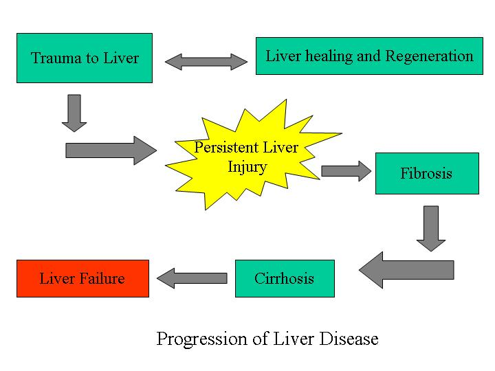8 Most Causes Of Liver Damage Are Pictures Wallpapers
