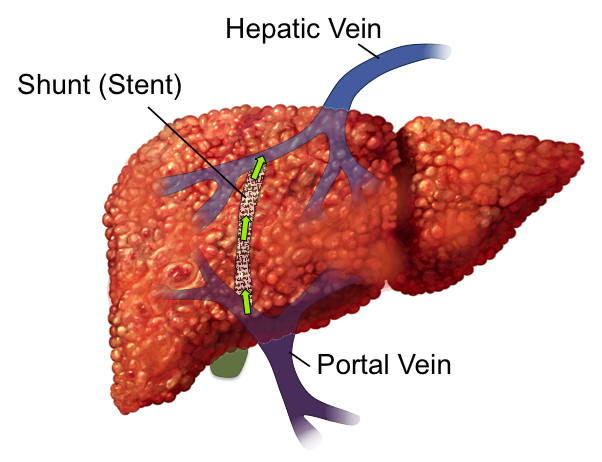 Causes And Treatments For Cirrhosis Of The Liver Myhealthtoday Pictures Wallpapers