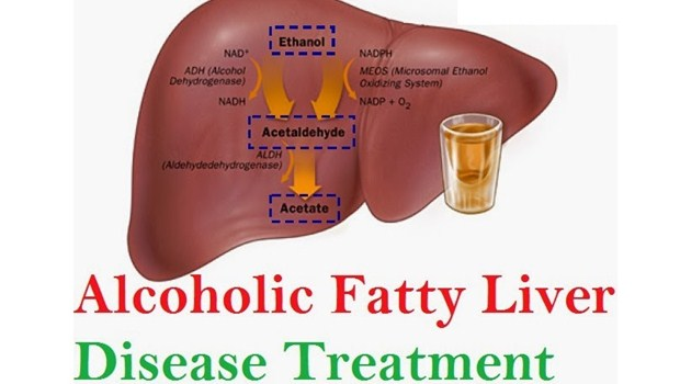 Fatty Liver Disease Pictures Wallpapers
