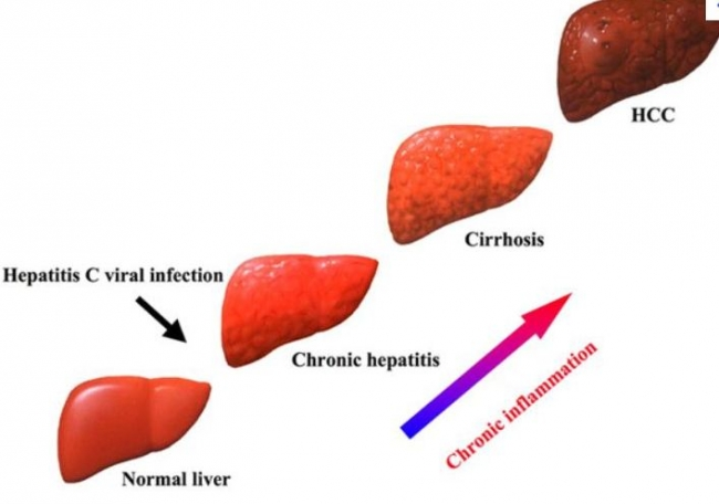 Liver Cirrhosis Treatment Cirrhosisofliver Pictures Wallpapers
