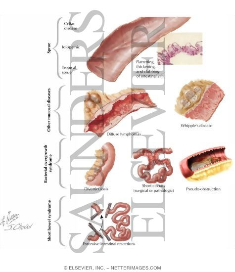 Uncategorized Liver Medicine Pictures Wallpapers