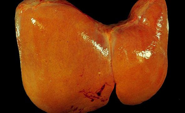 Effects Of Cirrhosis Of The Liver Pictures Wallpapers