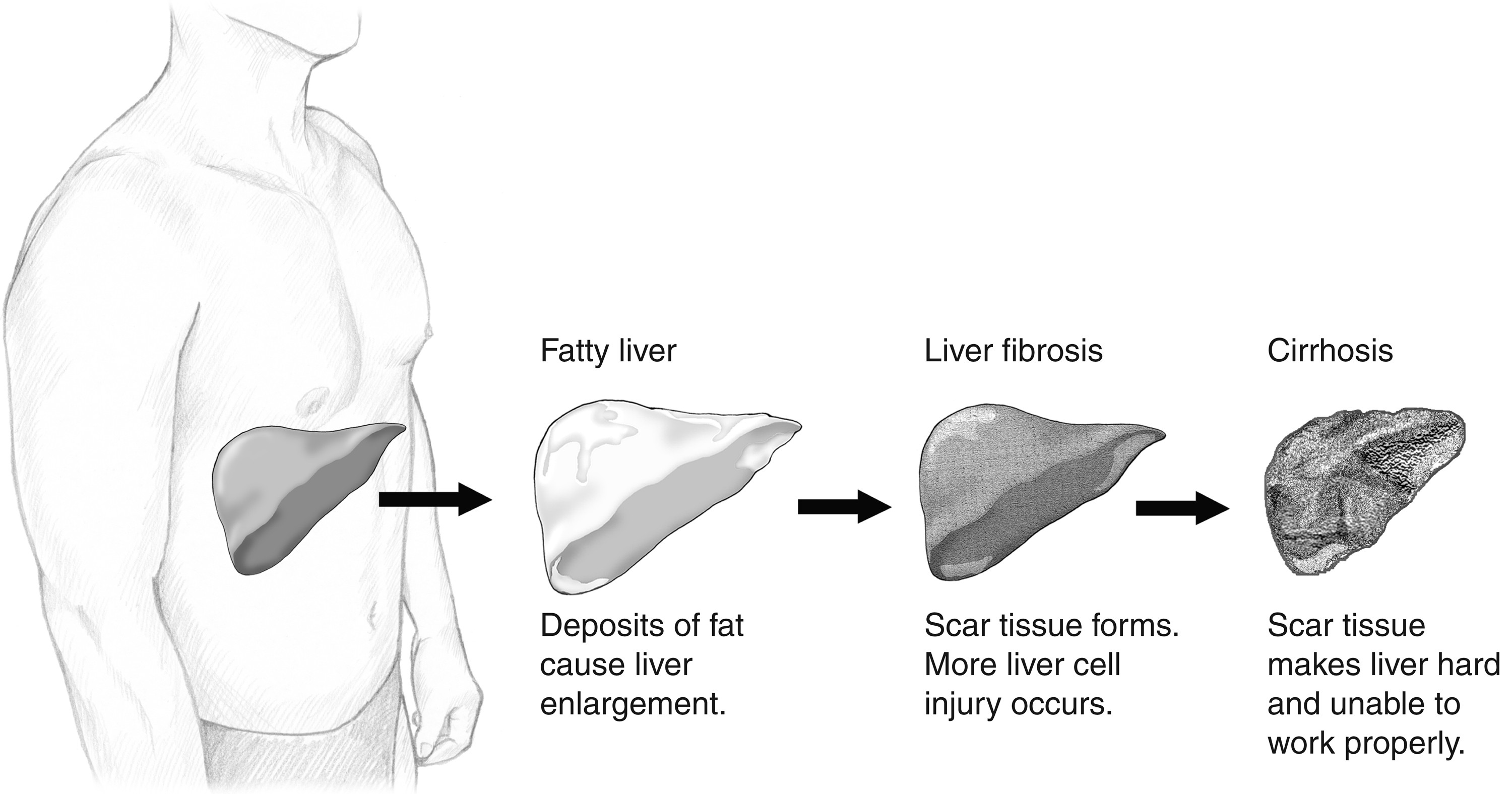 Liver Cirrhosis Pictures Wallpapers