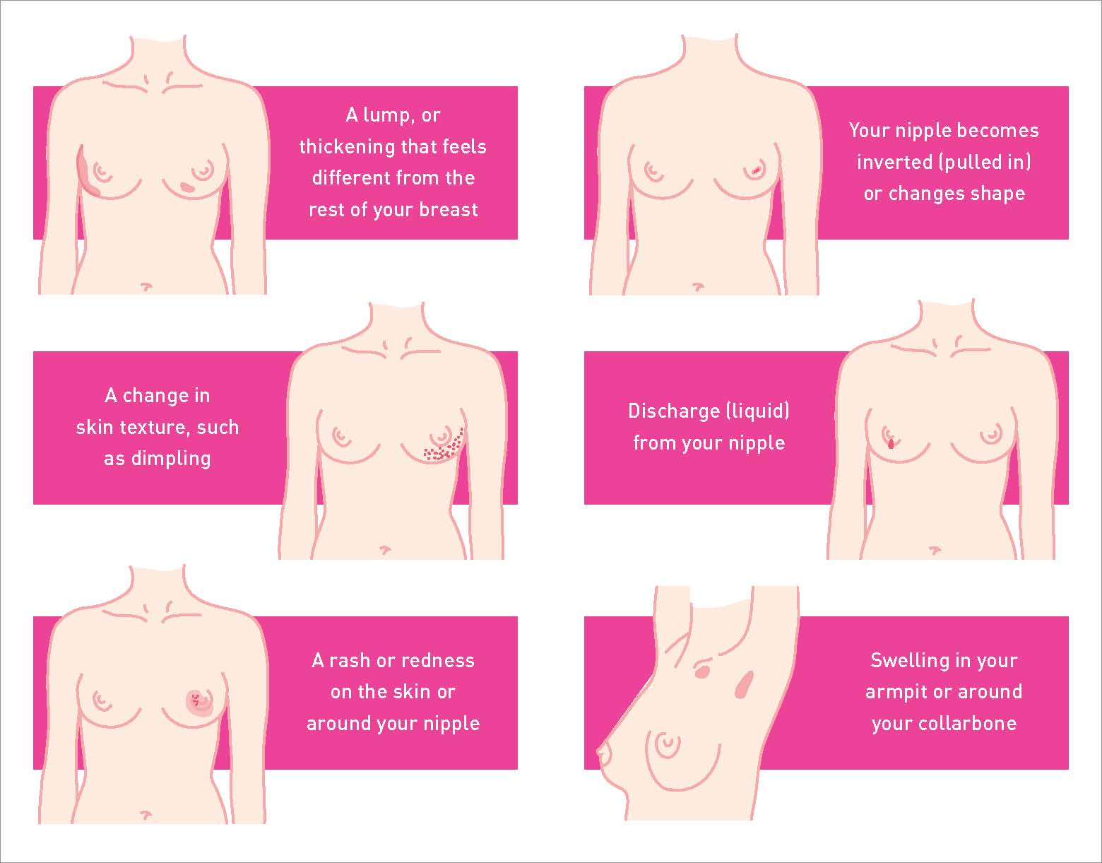 symptoms breast cancer in liver