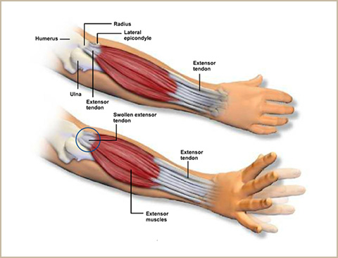 Muscles Tendons And Ligaments Of The Elbow Pictures Wallpapers