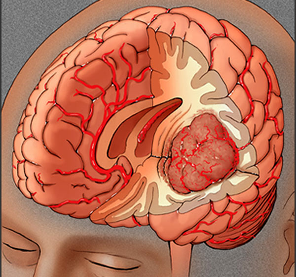 Are All Brain Tumors Cancerous Pictures Wallpapers