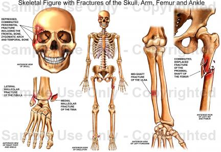 Arm Skeletal Anatomy Pictures Wallpapers
