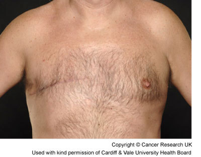 Breast Cancer Lump Men Pictures Wallpapers