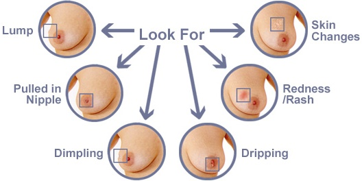 Breast Cancer Lumps Symptoms Pictures Wallpapers