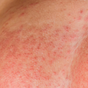 Breast Cancer Rash Symptoms Cpqwp