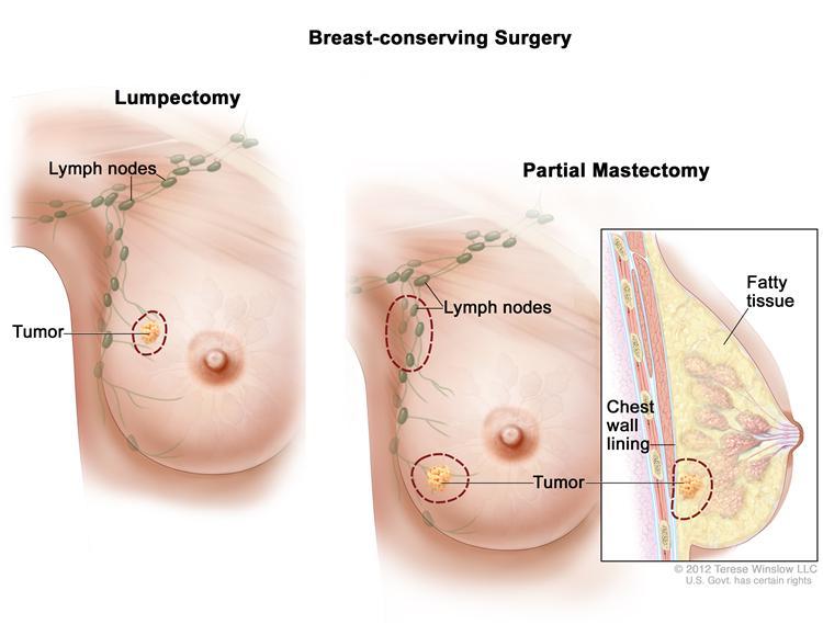 symptoms breast cancer in liver