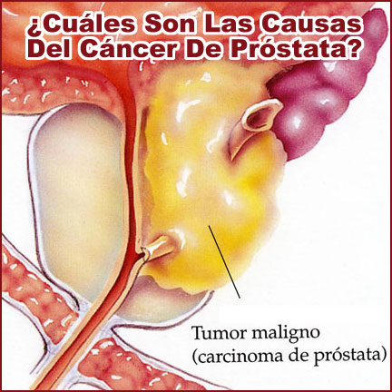 Cancer De Prostata Causas Pictures Wallpapers