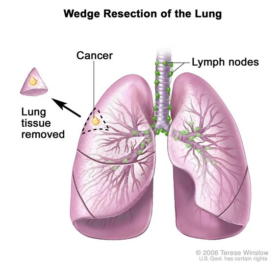 Cancer In Lungs Symptoms Pictures Wallpapers