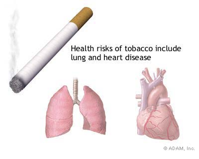 Cancer Of The Lungs Causes Pictures Wallpapers