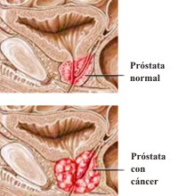 Cancer Prostata Sintomas Pictures Wallpapers