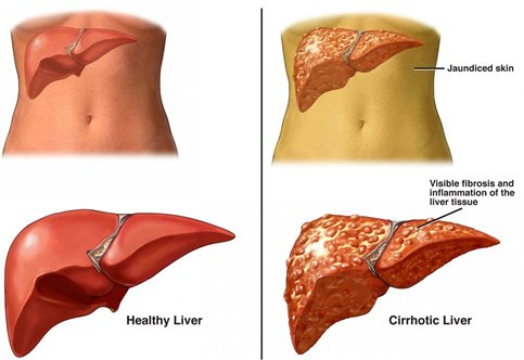 Causes And Treatments For Cirrhosis Of The Liver Myhealthtoday Tlpmqnkx