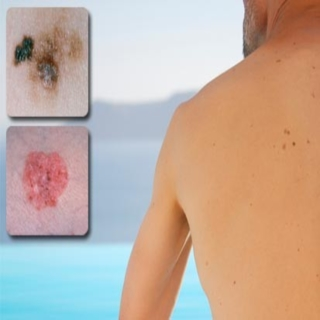 Cure Skin Cancer Pictures Wallpapers