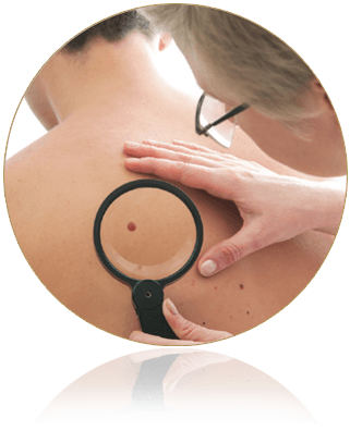 Early Detection Of Skin Cancer Pictures Wallpapers