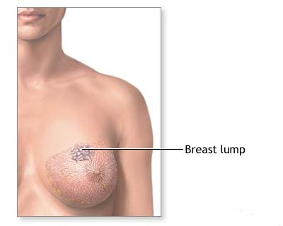 Early Stage Breast Cancer Symptoms Pictures Wallpapers