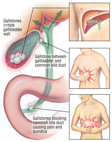 Gallbladder Stones Pain Pictures Wallpapers