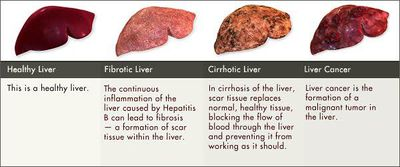 Hepatic Carcinoma Pictures Wallpapers
