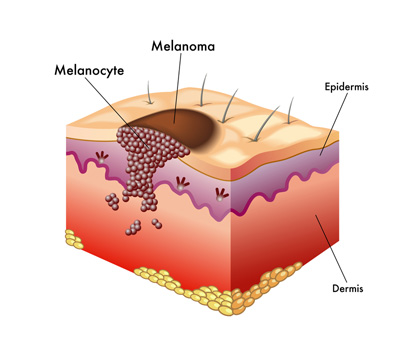 How Skin Cancer Is Diagnosed Pictures Wallpapers