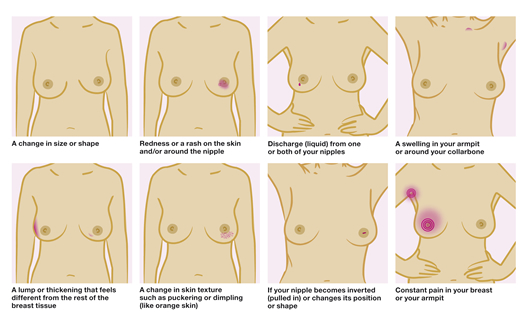 How To Tell You Have Breast Cancer Pictures Wallpapers