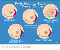 Is Pain In The Breast A Sign Of Cancer Pictures Wallpapers