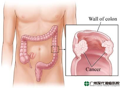 Liver Cancer Causes Which Would Be Dangerous Iym Health Pictures Wallpapers