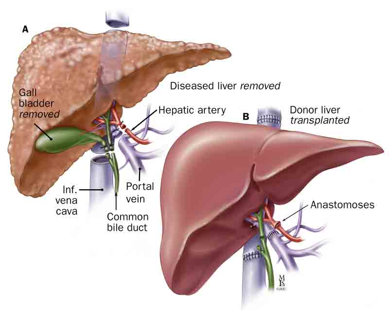 Liver Transplantation Patient Guide Partial Liver Transplantation Lsorgqfw