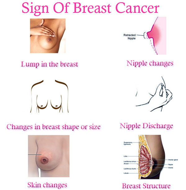 Lumps Breast Cancer Pictures Wallpapers