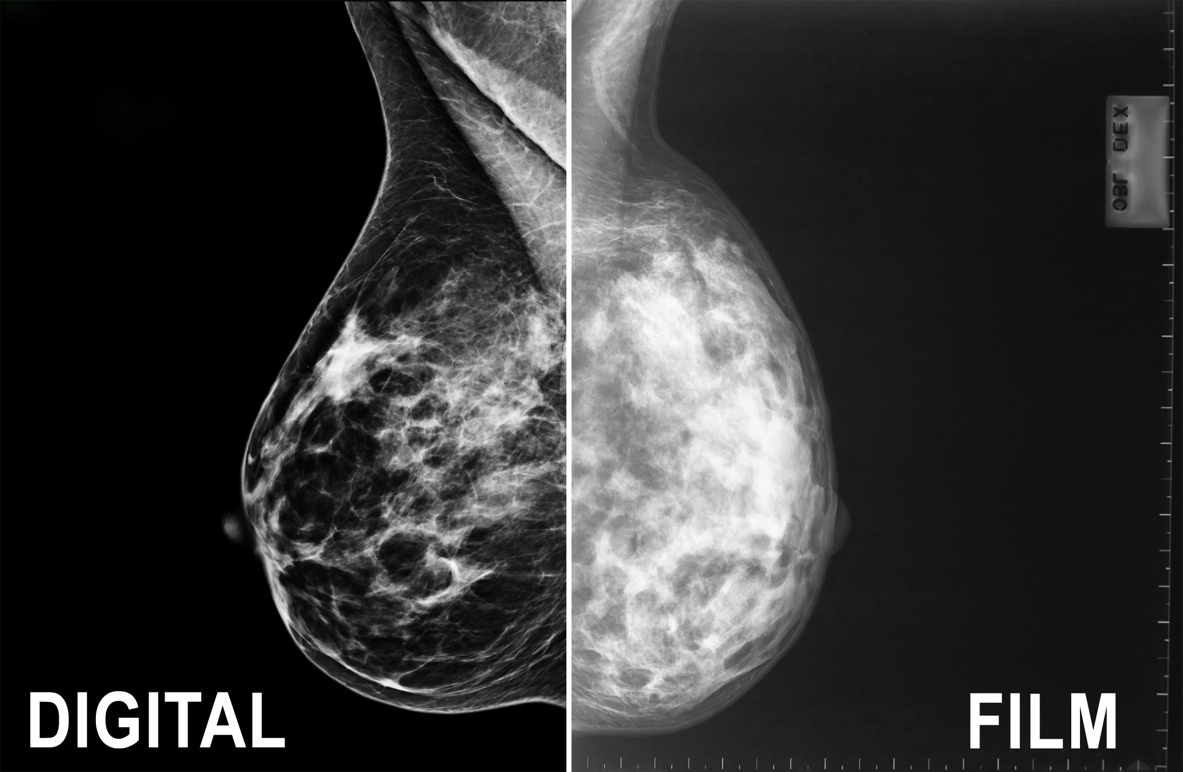 Mammograms Breast Cancer | MedicineBTG.com