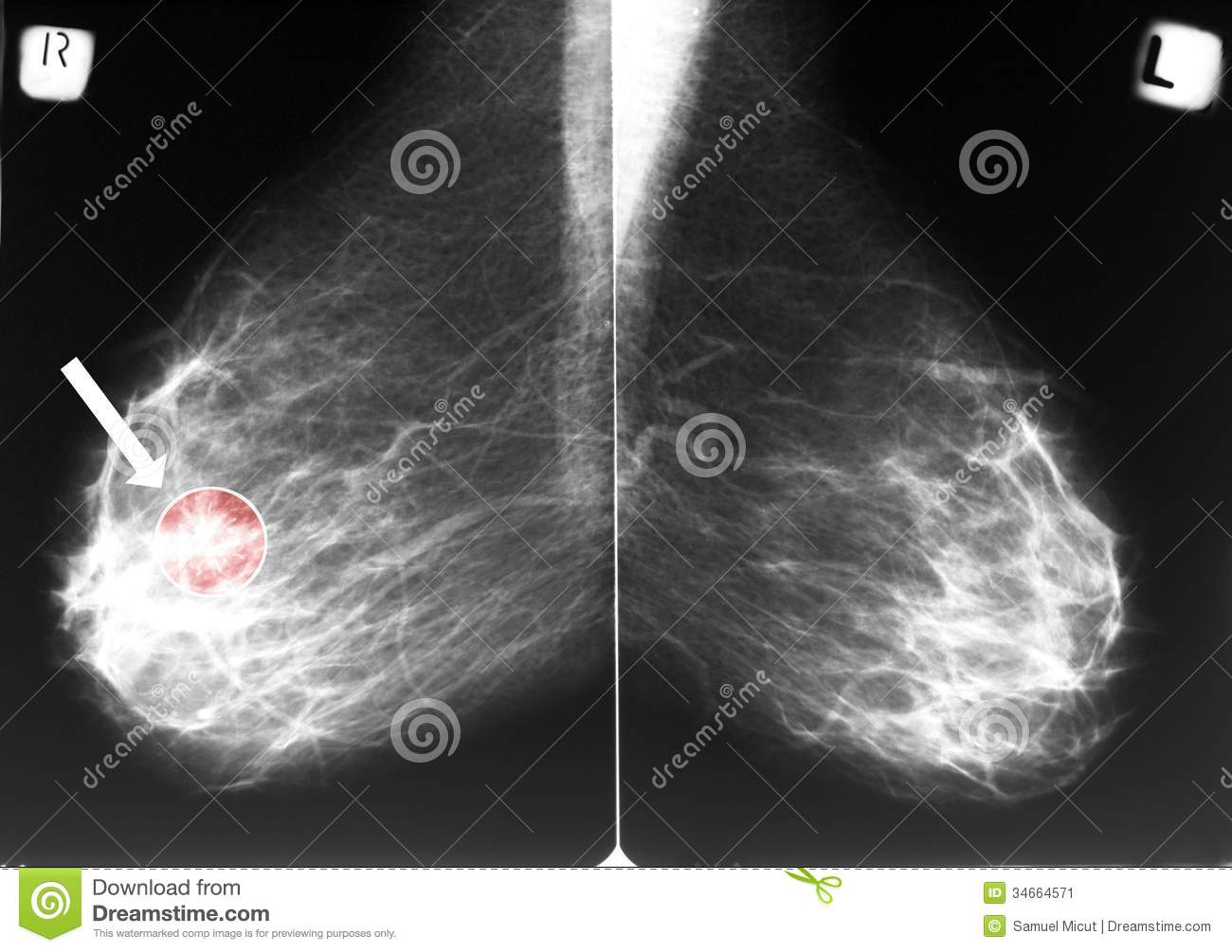 Mammograms Of Breast Cancer Pictures Wallpapers