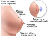 Pain Breast Cancer Symptoms Pictures Wallpapers