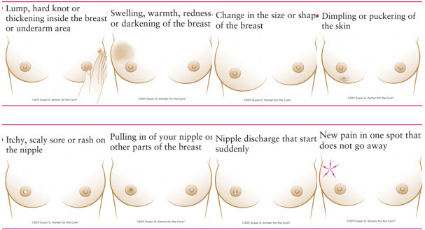 Signs Of Breast Cancer Lump Pictures Wallpapers