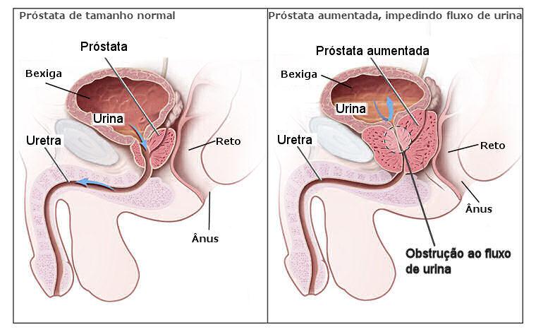 Sintomas Cancer De Prostata Pictures Wallpapers