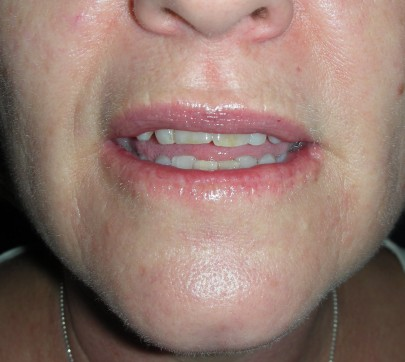 Skin Cancer Of The Lip Gnvdbbs