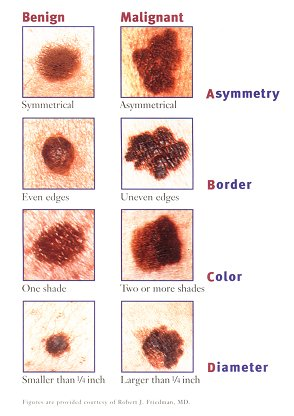 Skin Melanoma Cancer Pictures Wallpapers