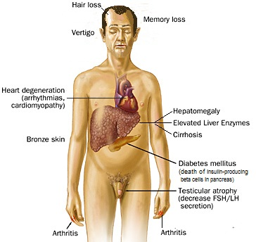 Symptoms Liver Damage Healthy Liver And Cancer Pictures Wallpapers