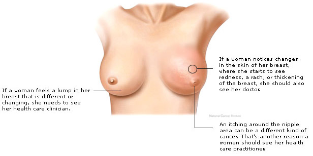 Symptoms Of Early Breast Cancer In Women Pictures Wallpapers