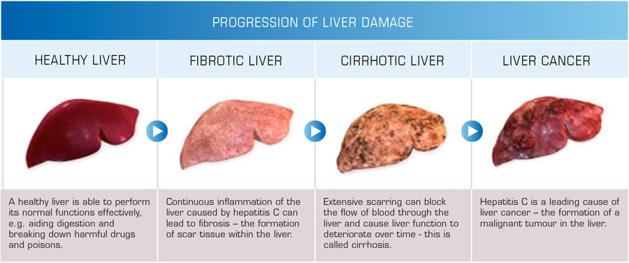 Symptoms Of Liver Disease Pictures Wallpapers