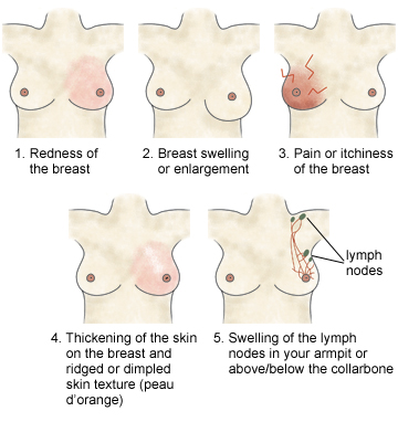 Symptoms Or Signs Of Breast Cancer Pictures Wallpapers