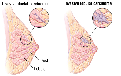 Types Of Breast Cancer Lumps Pictures Wallpapers