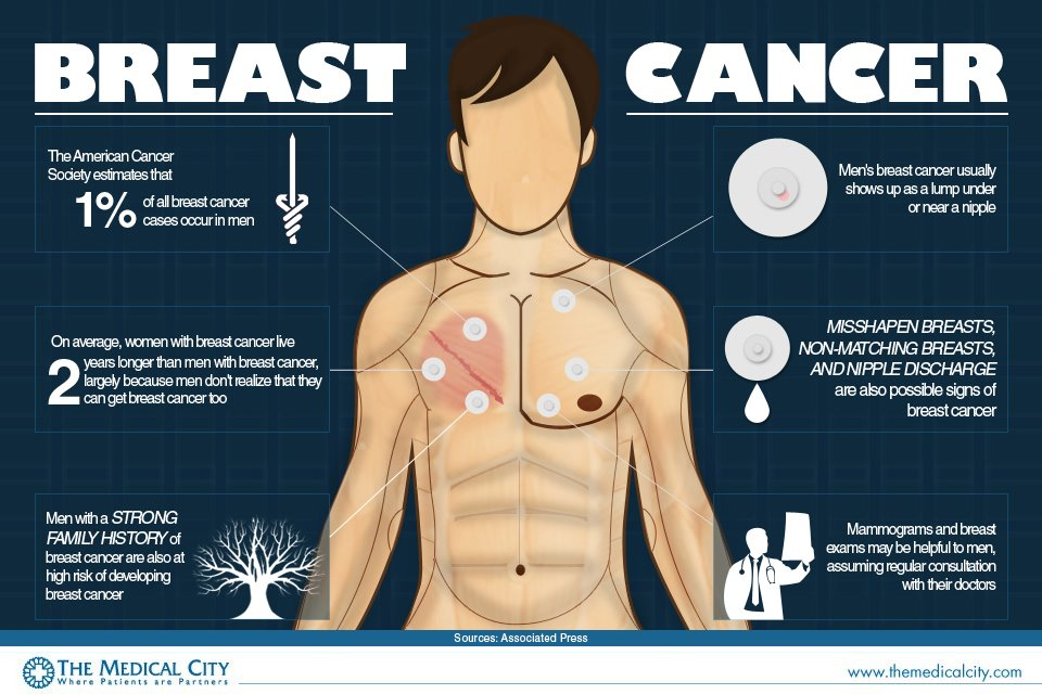 What Are Signs Of Breast Cancer In Men Pictures Wallpapers