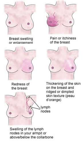 What Are The Breast Cancer Symptoms Pictures Wallpapers