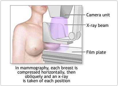 What Are The Diagnosis Of Breast Cancer Loofyl