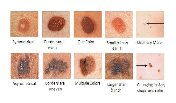 What Is Skin Cancer Screening Bavlscwgf