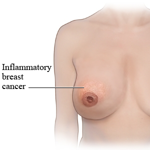 What Is The Symptoms Of Breast Cancer In Women Pictures Wallpapers