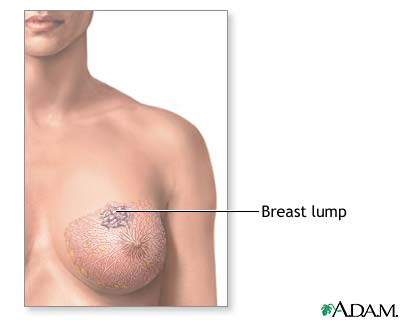Where Do You Find Breast Cancer Lumps Pictures Wallpapers