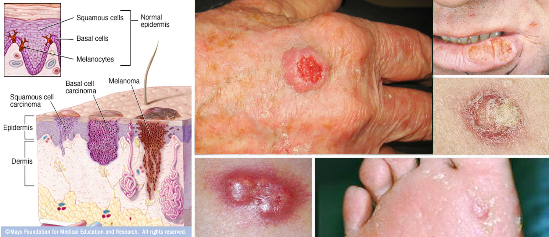 Where Is Skin Cancer Most Common Pictures Wallpapers